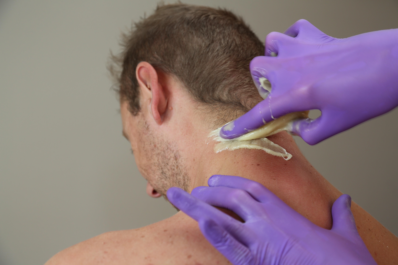 Sugaring Haarentfernung Männer Nacken